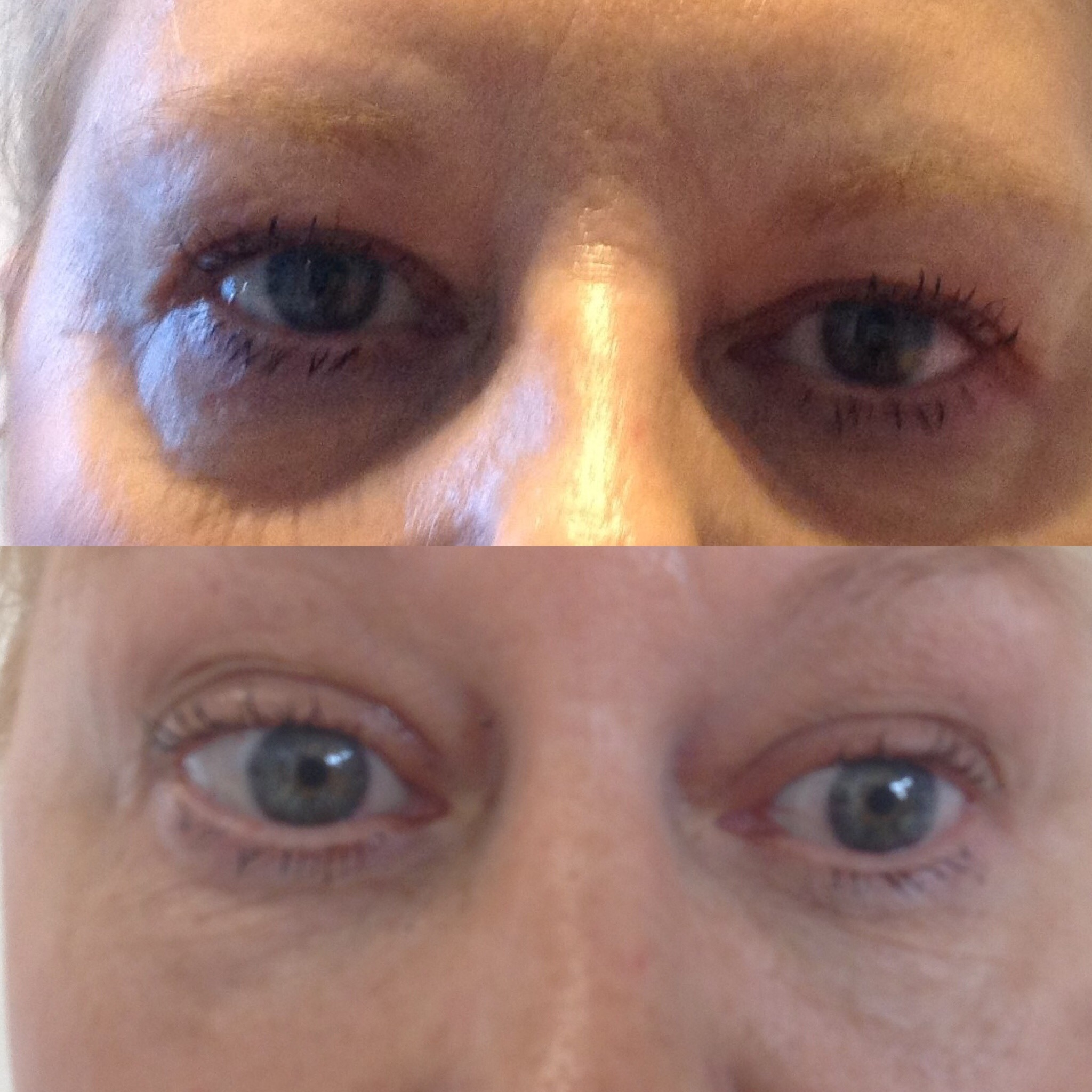 Tear Trough Correction - Beauty treatments in York and